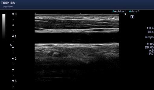 頸動脈画像